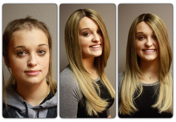 hair extensions for trichotillomania